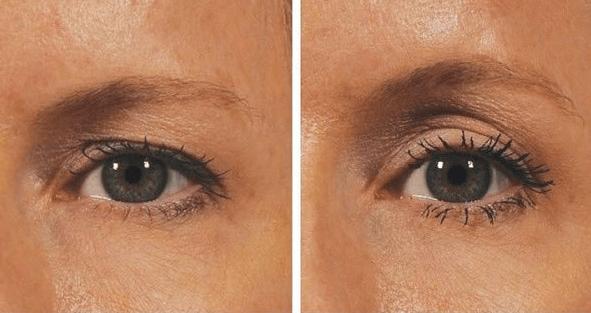 Vaak Last van hangende oogleden? Geen probleem, je kan ze op een @KK35