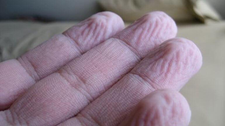 rimpelige vingers