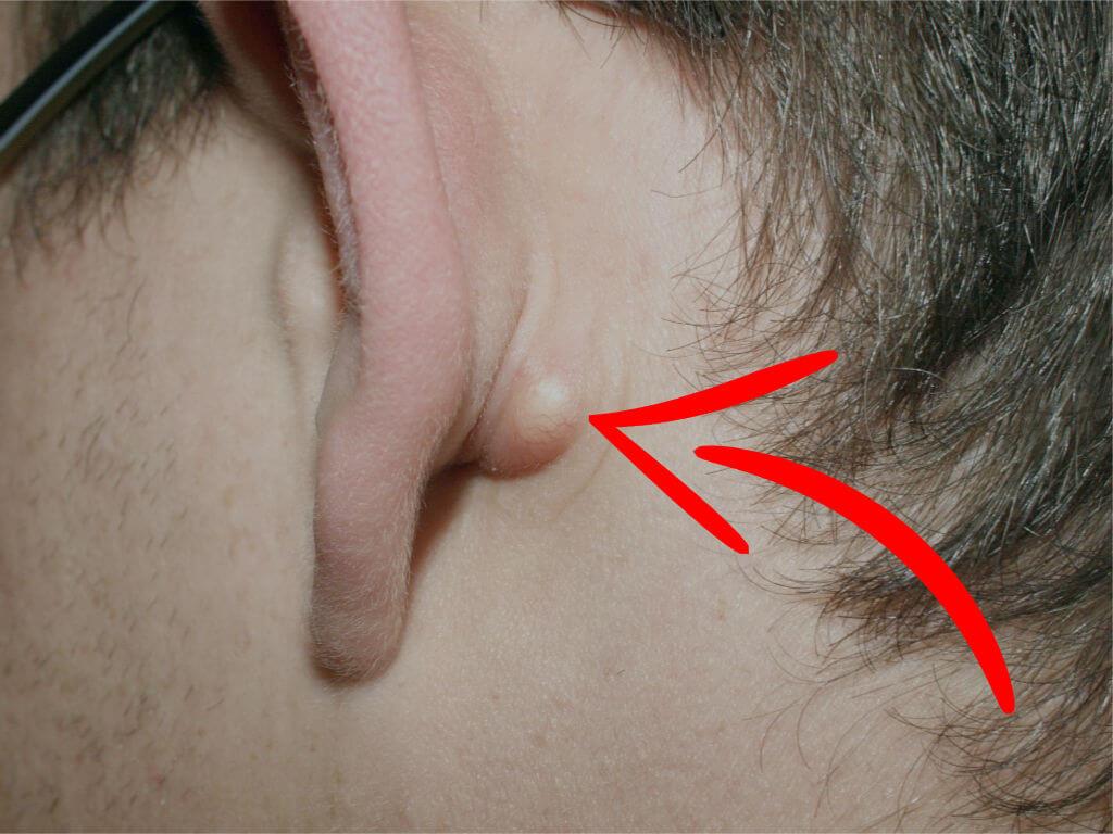 opgezette lymfeklier oor